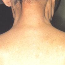 Nummular dermatitis - after