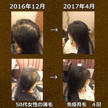 50代女性-脱毛症結果画像