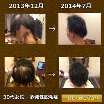 40代女性-多発性脱毛症画像