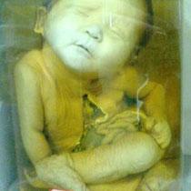 Ja, das ist ein ungeborenes Baby. Gefunden haben wir es in den Räumen hinterm Biosaal. Uns wurde gesagt, dass es von der Frau eines inzwischen pensionierten Lehrer stammt, es starb im Bauch im Alter von einem halben Jahr....