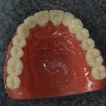 Fertiggestellte Keramik-Geschiebe-Implantat-Arbeit, lingual