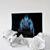Infertilité, 2017, bassin en porcelaine, feuille d'or, 60x40x8cm. Radiographie du bassin.
