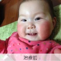 【西璃紗ちゃん治療前】顔全体がむくみ、ほっぺたの赤みが非常に強いです。