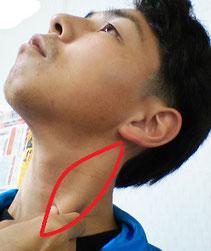 奈良県御所市の肩こりで耳の後ろが痛い男性