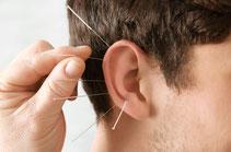 Akupunkturpunkte Ohr mit Laser