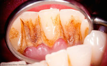 Die Hauptursache für Parodontose sind bakterielle Beläge. (© Zsolt Bota Finna - Fotolia.com)