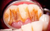 Die Hauptursache für Parodontitis sind bakterielle Beläge. (© Zsolt Bota Finna - Fotolia.com)