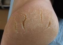 Kloven, klieven, eelt  aan de voeten bij medisch pedicure Voetenpraktijk Zundert