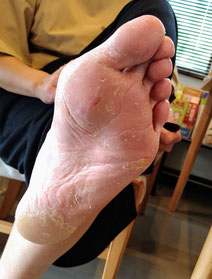 大分市 みつか漢方養生堂 掌蹠膿疱症①-2