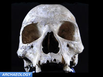 medieval skull with leprosy