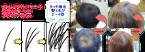 増毛千葉10円キャンペーン中少量少額から低予算で出来ます