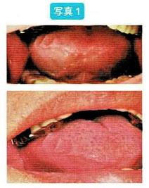 顎関節症:舌の外側に歯の圧痕