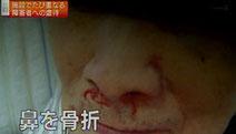 Image: NHKオンライン