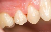 Entzündetes Zahnfleisch kann Folgen für Ihr Baby haben. (© Zsolt Bota Finna - Fotolia.com)