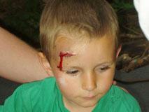 Kind mit RQW - Realistische Unfalldarstellung