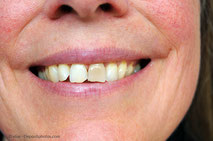 Können auch einzelne Zähne aufgehellt werden?