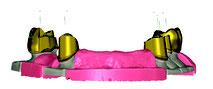 トーシンデンタル ジルコンザーン CAD/CAM ソフトウェア