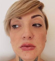 Lippen aufspritzen vorher nachher Bilder, nach der ersten Behandlung mit 1 ml Hyaluron
