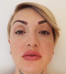Lippen aufspritzen vorher nachher Bilder, nach der zweiten Behandlung