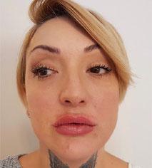 Lippen aufspritzen vorher nachher Bilder, nach der dritten Behandlung