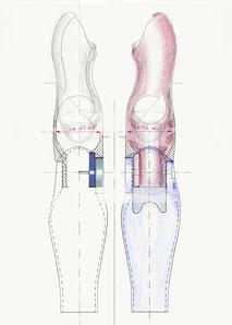 Unterarmprothese Armprothese myoelektrische Prothese 3D-Druck Dysmelie Klinz Bernburg