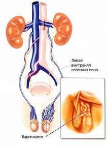 Варикоцеле чаще бывает слева. Лучший метод лечения - операция Мармара.