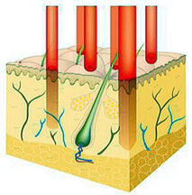 フラクショナル炭酸ガスレーザー光が皮膚に照射された時のイメージ図