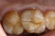 ein so zerbrochener Zahn kann nicht mehr gerettet werden