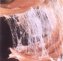 筋膜リリース,東京,池袋,筋膜セラピー,筋膜,体験,はがし