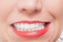 歯の食いしばりイメージ