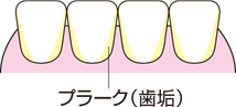 八戸 歯医者 ホワイトニング マウスピース矯正