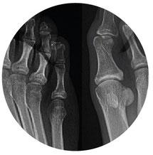 diagnostico imagen oliva radiologia oliva rayos x doplor pies hueso roto pie recuperacion baja laboral