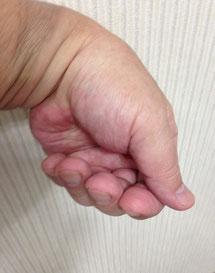 画像② 陰の陽で与える。手首の屈曲・伸展で広義の陰陽。母指先の回内・回外で巡る。小指から狭義の陽で巡り、母指からは狭義の陰で巡る。母指は常時兆しを示す。