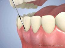 歯周ポケット検査1