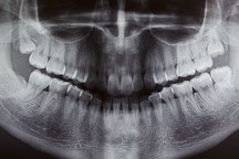 OPT, OPG, Orthopantomogramm