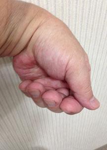 画像① 鳥船左の魂氣、陰の陽で包んだ掌。陰の陽で与える手と同じ。弛緩屈曲した指で掌を包み、手背を差し出す。地を指す母指は常に伸展。