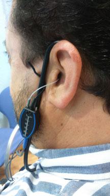 Medidas en oído real con sonda microfónica.