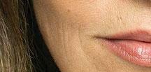 Wrindeld Face Skin