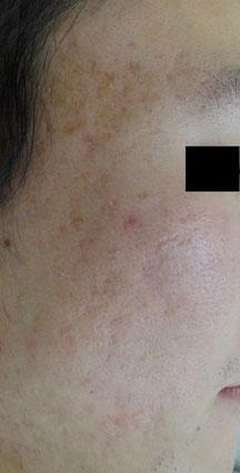 ニキビ跡 クレーター治療 凸凹 アフターの症例写真