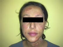 Femme traitée avec Rigenera pour des reprises de cicatrices