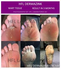 HFL Dermazink 2 maal daags aanbrengen. Resultaat na 3 maanden