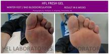 Behandeling van wintervoeten met Fresh legs. Dit resultaat behaald in 6 weken, om de 6 uur opbrengen.