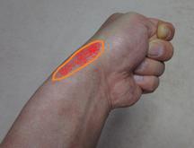 フィンケルスタインテストでオレンジの範囲が痛くなると陽性です。