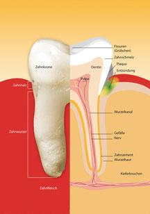 Parodontose und Invisalign-Kieferorthopädie