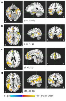 Fig. 5. Imágenes de RMF de un grupo de personas sanas después de entrenar de forma simultánea con neurofeedback y RMF.