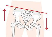 座骨神経痛、尾てい骨痛