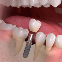 Zahnimplantat Zahnkrone Zahnersatz