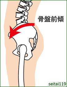 反り腰,骨盤前傾の姿勢