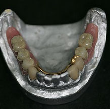 Zahnersatz Brücken Kronen Prothesen