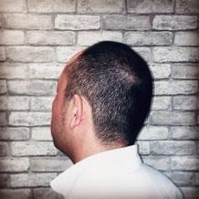 千葉市理容室薄毛の悩み解決男のヘアスタイル写真